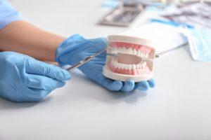 Bei Zahnersatz sollten sich Patienten über die verschiedenen Behandlungsmethoden informieren.