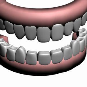 Vor dem Zahnimplantat machen Zahntechniker ein Implantationsmodell.