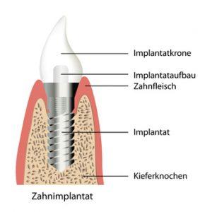 Patienten, die ein Knochenbauverfahren benötigen, sollten sich vorab über die verschiedenen Möglichkeiten informieren.